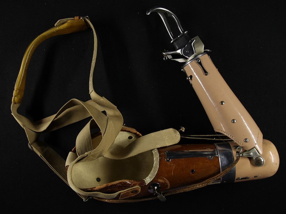 Photograph of a prosthetic arm.
